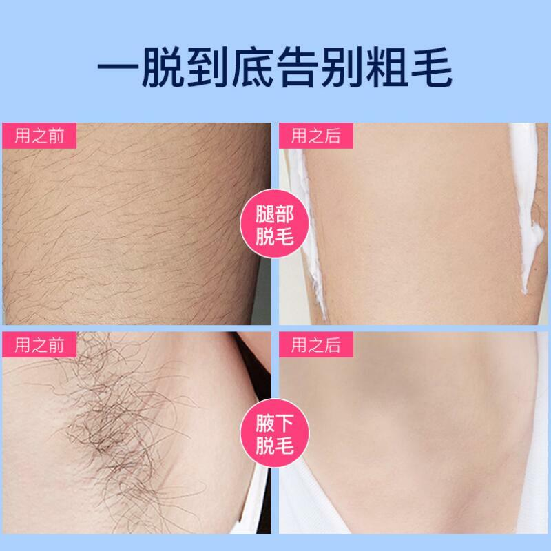 إزالة الشعر الوجه مزيل الشعر الإبط جزء خاص الساق الذراع الإبط إزالة الشعر إصلاح إزالة الشعر الشمع
